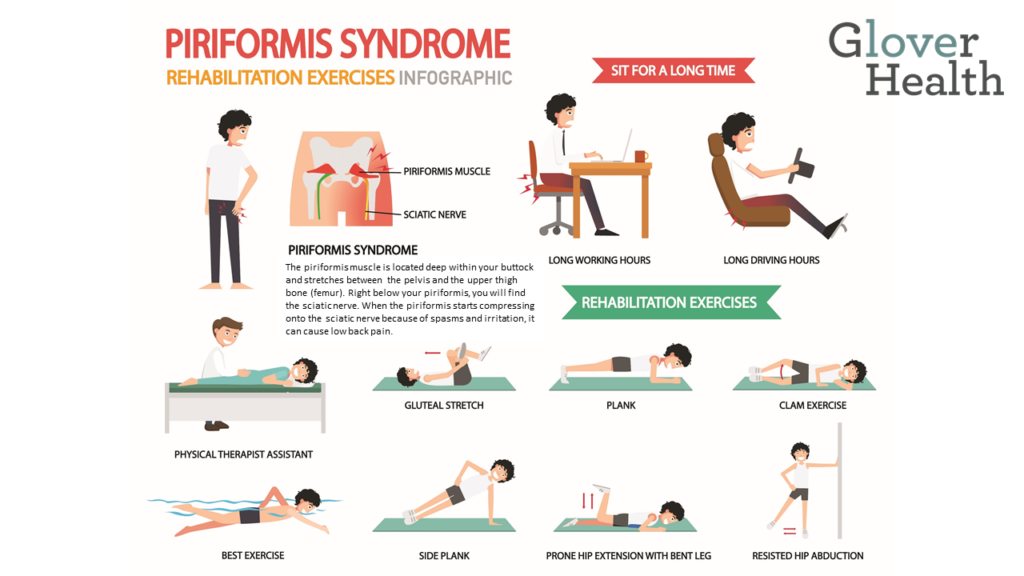 Is Piriformis Syndrome Causing Your Lower Back Pain?